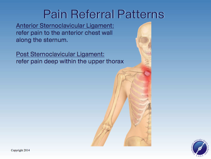 Sternoclavicular LigamentCapsule Pain Referral Pattern Adorable Pain Referral Patterns