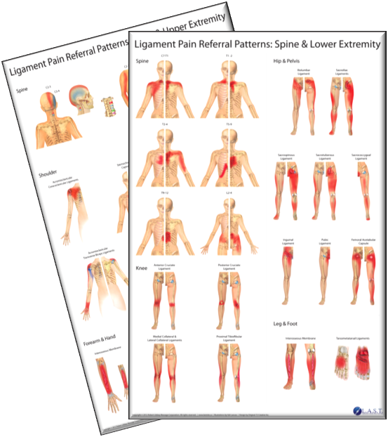 Ligament Pain Referral Patterns Stunning Pain Referral Patterns