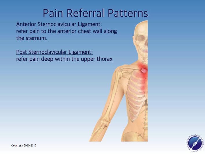 SCJ Referral Patterns