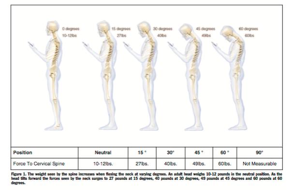 Head Forward Posture Research