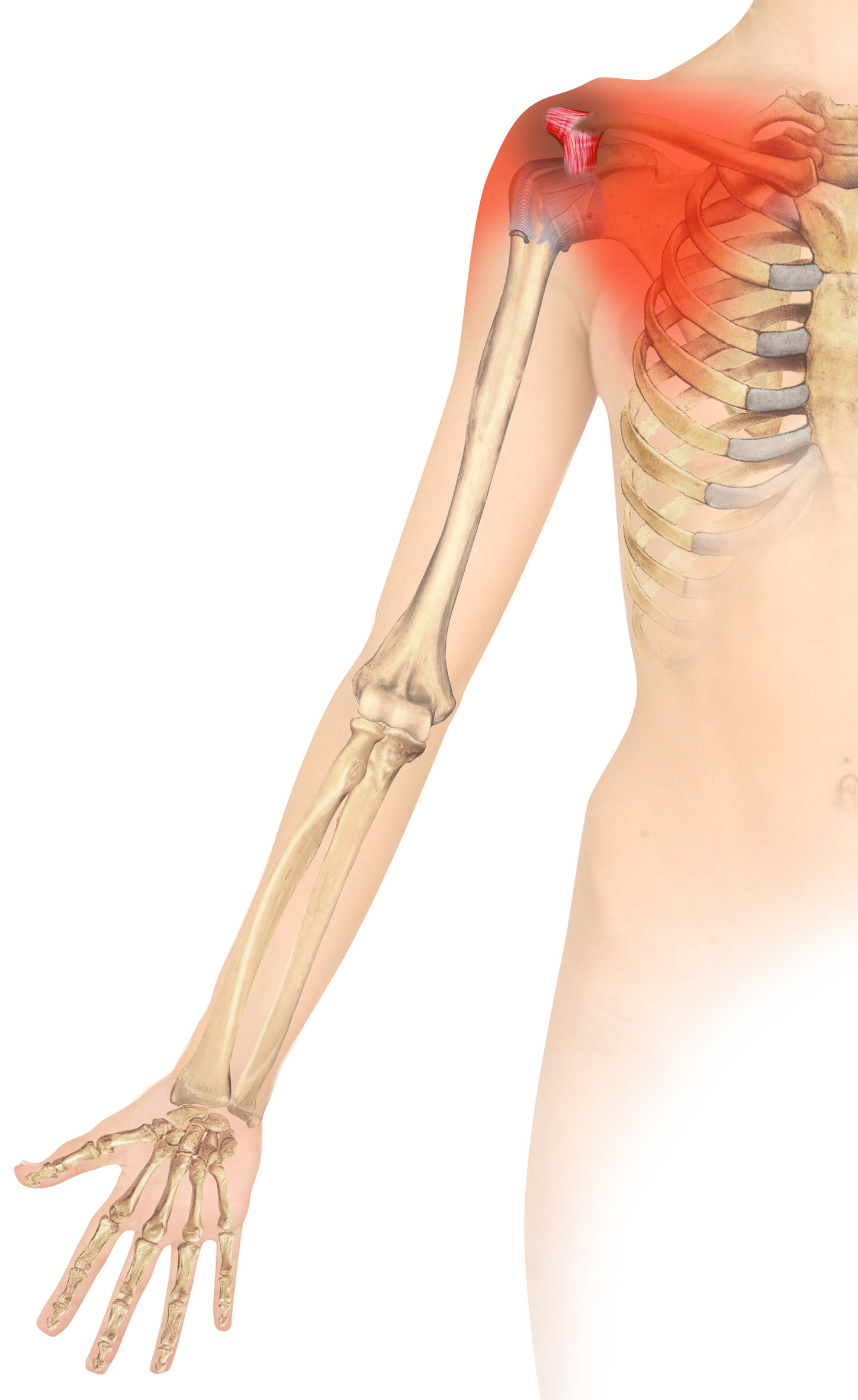 VIDEO INSIDE) Coracoid Pain Test: A New Clinical Sign of Shoulder ...
