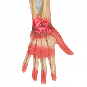 Manual Therapy vs Surgery: Carpal Tunnel Syndrome