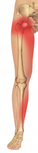Anterior A-F Joint